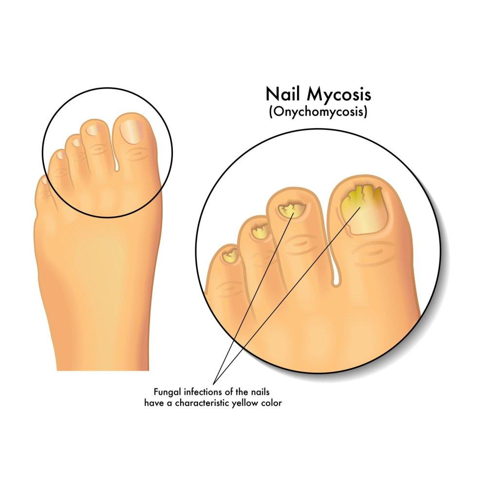 Probelle Natural Fungal Nail Treatment, Anti Fungal Nail Treatment ...