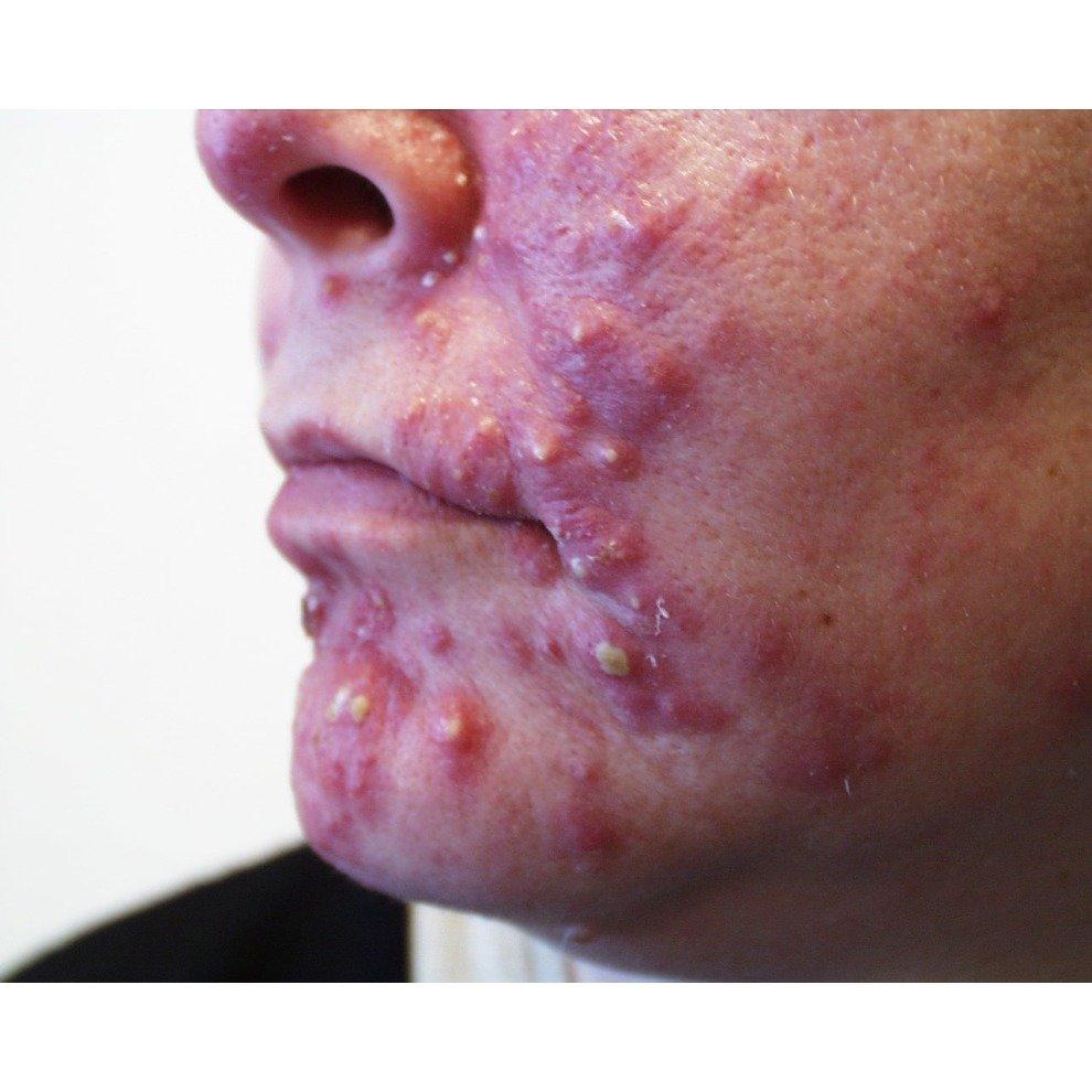 Sulphur Ointment Cream + Free Sulfur Soap Acne Blackhead Spot Cyst
